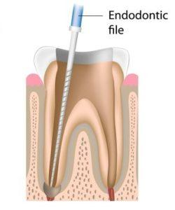 Endodontic file