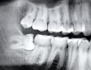 Wisdom Teeth Mosman Village Dentistry